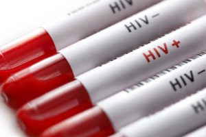 В России зарегистрировано наибольшее число новых случаев ВИЧ в Европе